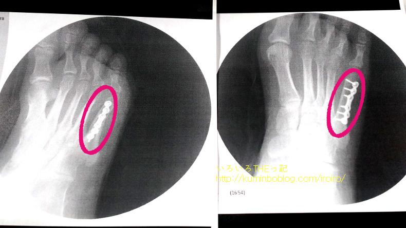 手術後のレントゲン