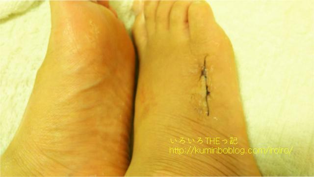 手術後の傷跡