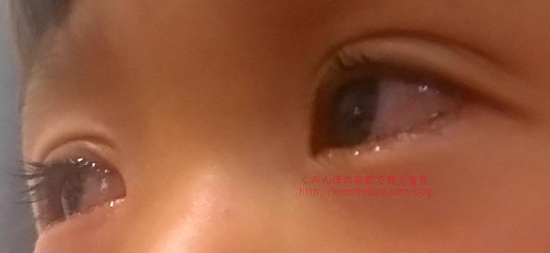【体験】子供の目が充血して腫れて痒がりこする。目やにも出てるけれど熱はない。なんの病気?