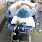 足の甲の骨折の手術